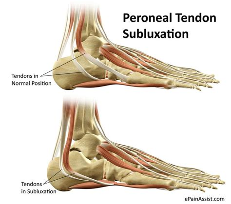 shoes for peroneal tendonitis 1000 ideas about ankle stretches on ankle