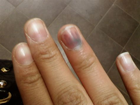 nail bed melanoma subungual melanoma of the nail quotes