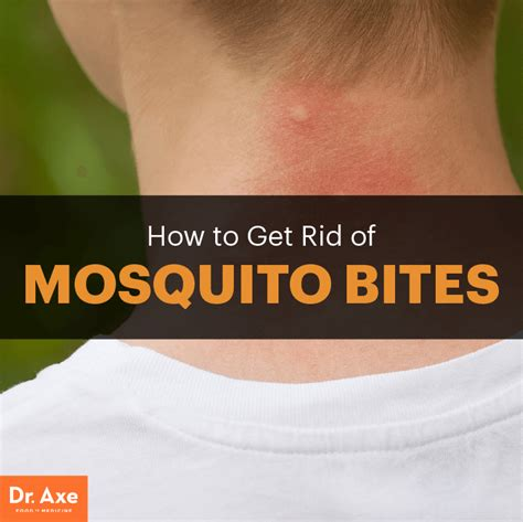top 5 home remedies for mosquito bites dr axe
