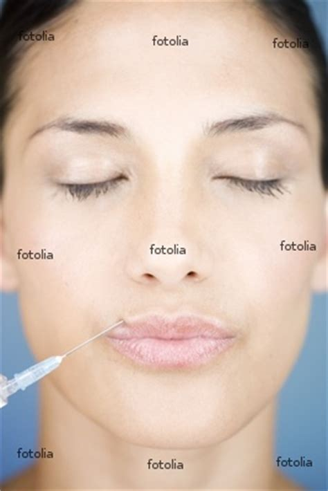 collagen injection causes symptoms treatment collagen