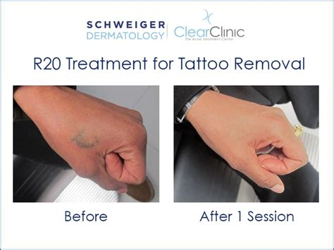 tattoo removal service nyc best tattoo removal at home