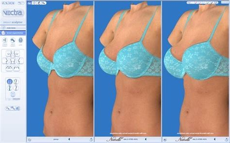 With The Breast Implants by Breast Augmentation Cost With Dr