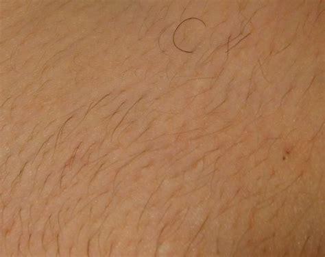 dark pubic hair more dark hair growth 13 weeks after 4th laser hair