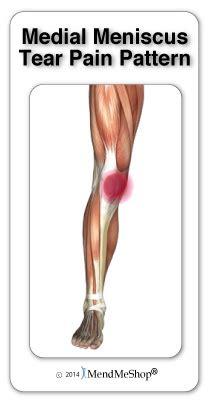 inner tear pattern associated with a medial meniscus tear