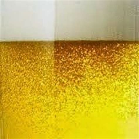 3 protein in urine what does it 1000 images about kidney facts on kidney