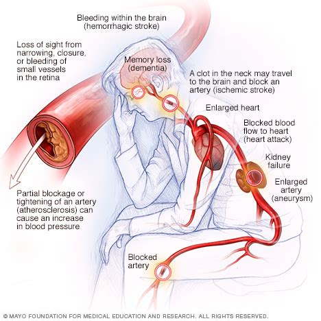 c section due to high blood pressure high blood pressure dangers hypertension s effects on