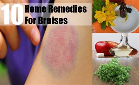 10 bruises home remedies treatments and cure