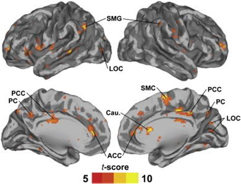 mail motorcar gr loc us volume renders of the brain showing regions where iscs