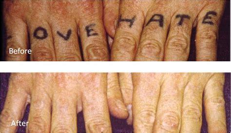 online tattoo removal http www 100percentbestchoice com get rid tattoo the