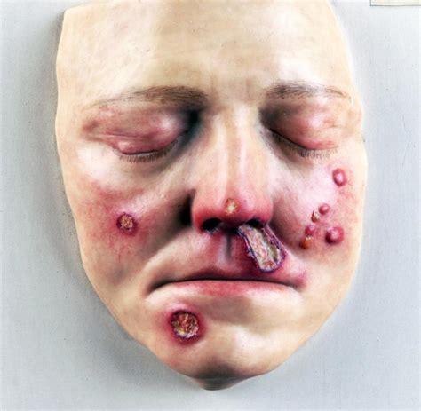 wann bricht herpes nach ansteckung aus abszess wann die bakterielle infektion gef 228 hrlich wird welt
