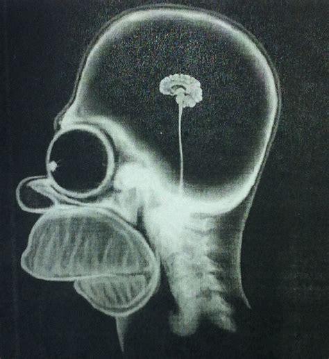 Mri Also Search For Mri Of Homer Pea Brain Found Mri Xray