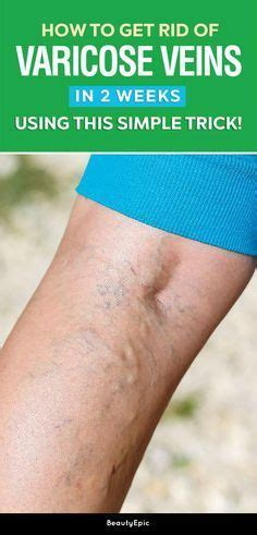 8 Ways To Get Rid Of Varicose Veins by How To Get Rid Of Varicose Veins In 2 Weeks Using This