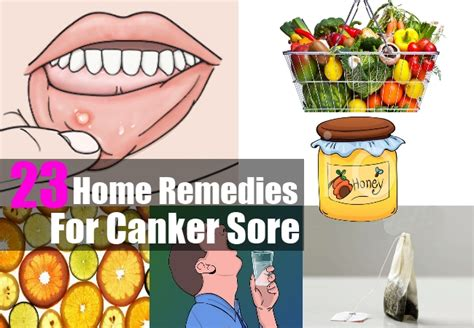 home remedies for canker sore