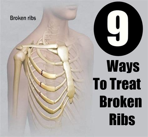 Healing Time For Bruised Ribs General Center | how to treat broken ribs diy home remedies kitchen