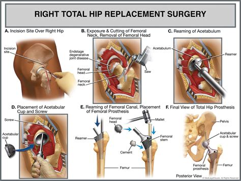 hip process ceramic quotes about hip replacement 18 quotes