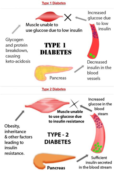 highs lows of type 1 diabetes the ultimate guide for and adults books diabetes type 1 diabetes v s type 2 diabetes visual ly