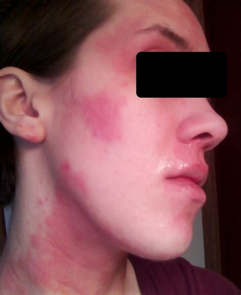 patchy rash on eczemaexcellence