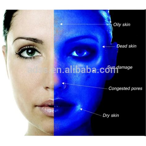 wood l skin analysis skin analyzing portable machine for skin test buy