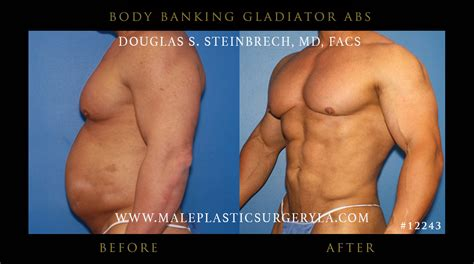 Did Banks Liposuction by Bodybanking 174 Before And After Photo Gallery By Dr Steinbrech