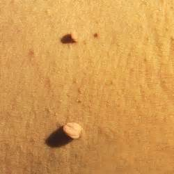 skin tags skin tags how to get rid of 15 pesky health problems health