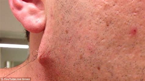best thing for ingrown hair man pulls world s longest ingrown hair out of his face