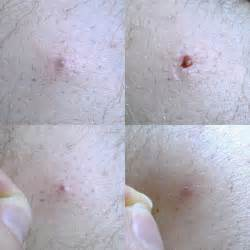 does ingrown hair hurt ingrown hair in mole doctor insights on healthtap