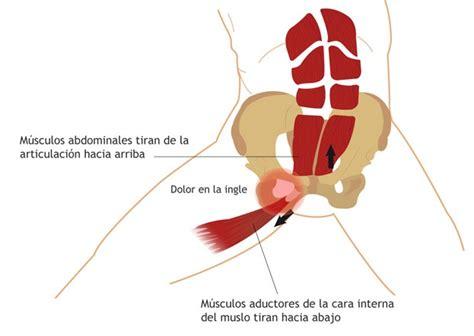 dolore coscia interna pubalgia fisioterapia tello cadarso