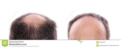circular pattern hair loss hair loss royalty free stock photography image 31505797