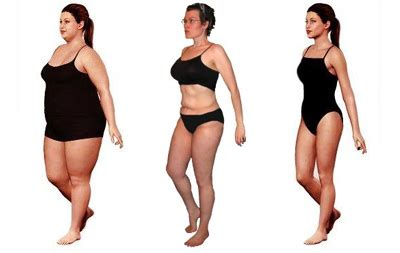 contouring following bariatric surgery and weight loss post bariatric contouring books surgery after weight loss
