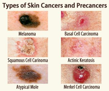 what color is melanoma identifying skin cancer samaritan health services