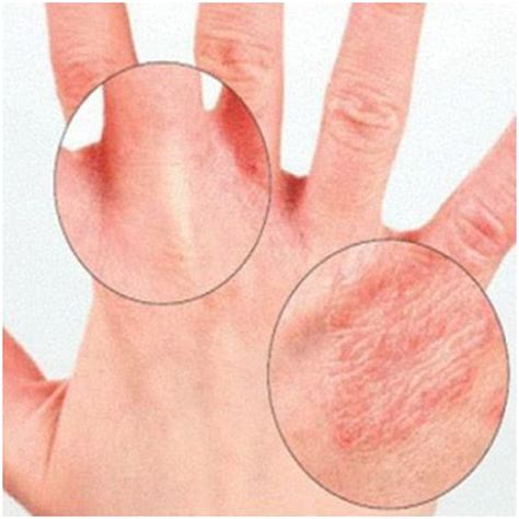 a substance that causes sensitivity to light vitamin e deficiency causes symptoms and treatment