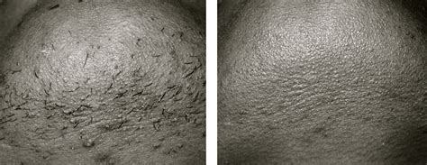diode laser hair removal before and after laser hair removal atlanta before after pictures