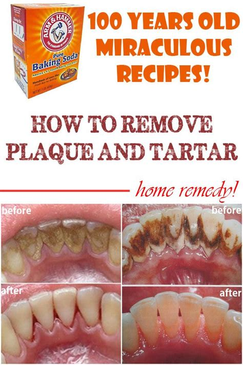 How Does Of Tartar Detox by 25 Best Ideas About How To Remove Plaque On