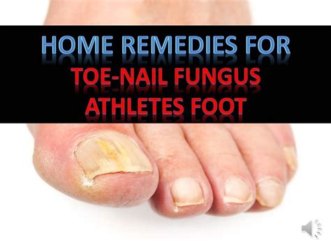 home remedies for toenail fungus athletes foot