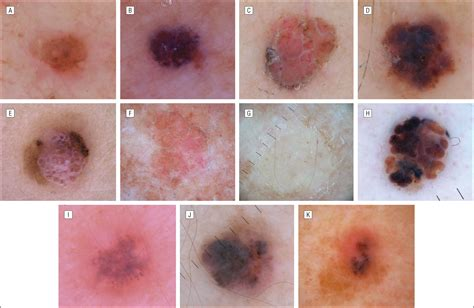 what color is melanoma historical clinical and dermoscopic characteristics of