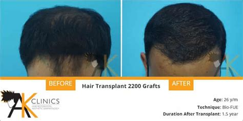 prescreened hair transplant physicians prescreened hair transplant physicians what is the