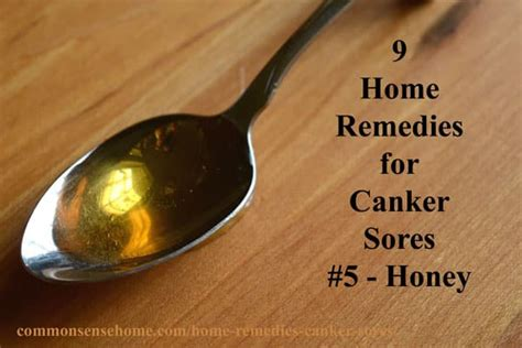 Home Remedy For Canker Sore by 9 Home Remedies For Canker Sores Tips To Avoid Canker