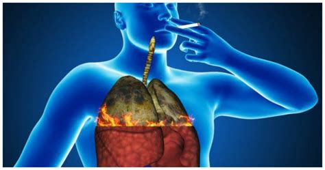 Detox Brain Damage by 6 Ways To Cleanse And Revitalize Lungs In Smokers And Ex