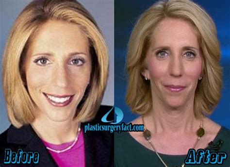 mika brzezinski plastic surgery before and after pictures 25 best ideas about dana bash on pinterest fox news