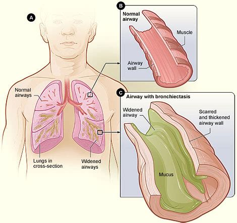 coughing after c section what is bronchiectasis nhlbi nih