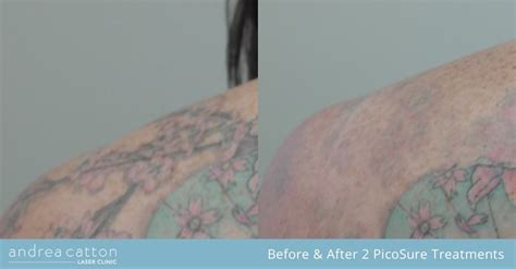 tattoo removal training courses uk 100 removal courses uk k brothers