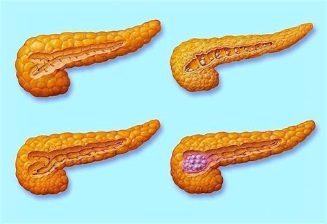 tumore alla testa pancreas tumore pancreas caroldoey