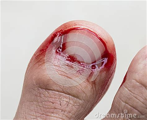 toenail bleeding bleeding at toe royalty free stock photo image 31709735
