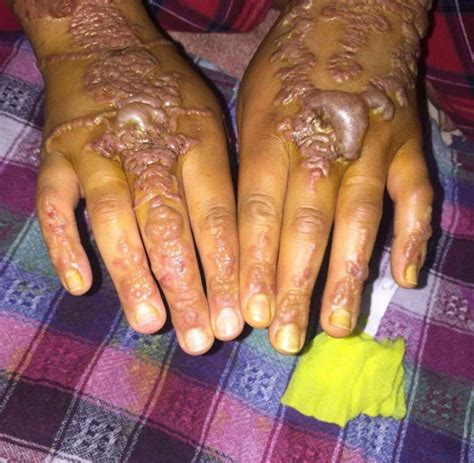 woman s hands come out in blisters after getting black