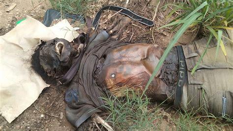 imagenes fuertes de cadaveres en descomposicion medicina forense soy criminalista