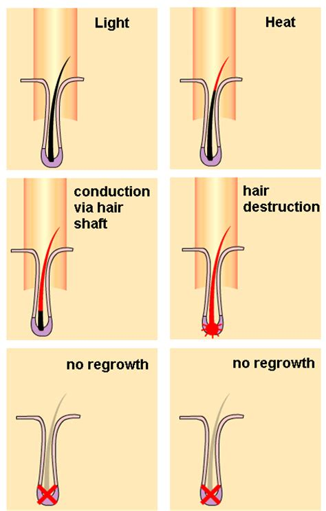 how does diode laser work for hair removal does laser hair removal work