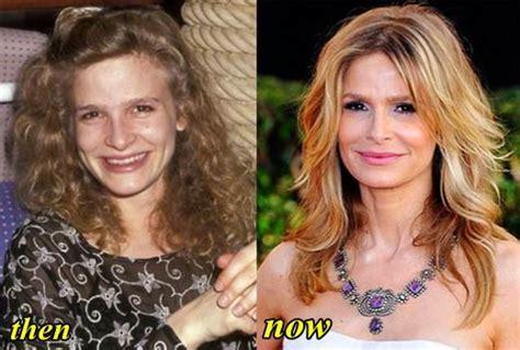 jennifer jason leigh looks like kyra sedgwick kyra sedgwick plastic surgery before and after plastic