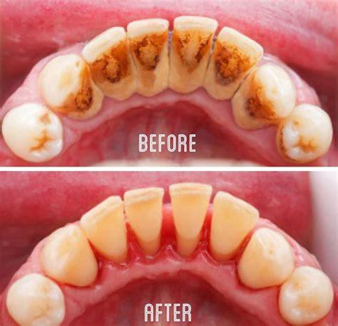 karang gigi intip  mencegahnya  mengatasinya