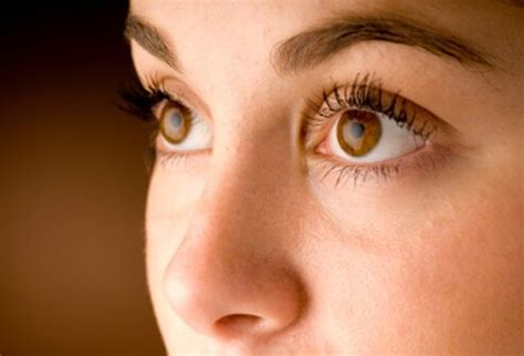 what disease does amy from my big fat faboulus life have common eye problems and infections