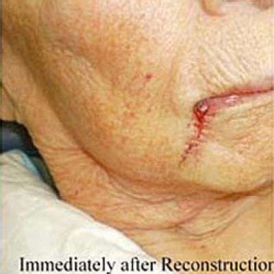 3 photodynamic therapy for acne philadelphia robert rsb dermatology robert s bader md mohs micrographic